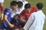 Tuyển Việt Nam hai lần gặp tổn thất ở sân Thống Nhất-1