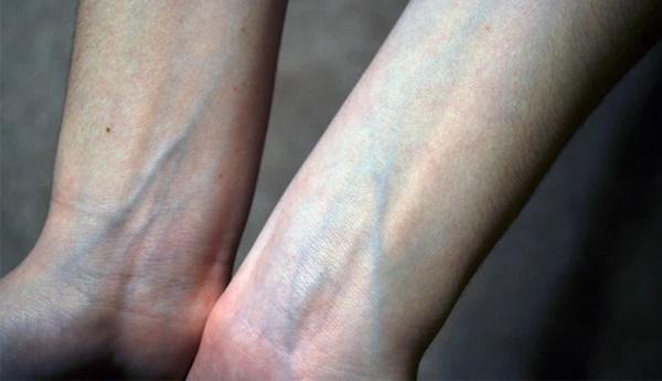 Người có gan xấu sẽ hiển thị rõ 4 vấn đề trên đôi bàn tay, mắc trúng 2 cái thì nên đi khám ngay-2
