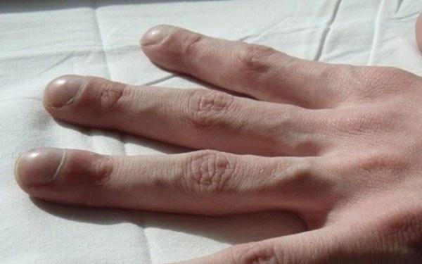 Người có gan xấu sẽ hiển thị rõ 4 vấn đề trên đôi bàn tay, mắc trúng 2 cái thì nên đi khám ngay-3