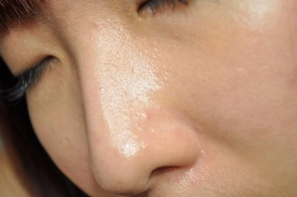 Da dầu nhưng thiếu ẩm khiến lỗ chân lông to ngoác và mụn hoành hành: Muốn khắc phục cần làm đúng 3 bước này-2