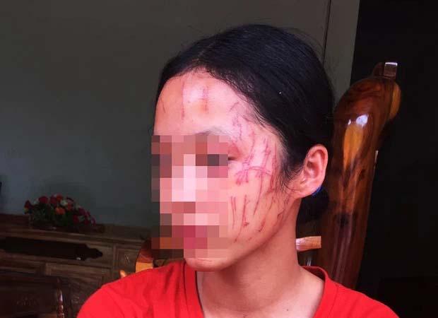 Rùng mình hình ảnh nữ sinh lớp 8 bị đàn chị cào nát mặt: Hé lộ nguyên nhân-1