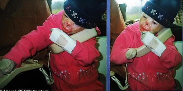 Cô bé từng bỏng nặng đến biến dạng, cứu hoả nhìn cứ ngỡ là búp bê nhựa đen gây bất ngờ với diện mạo và cuộc sống hiện tại-3