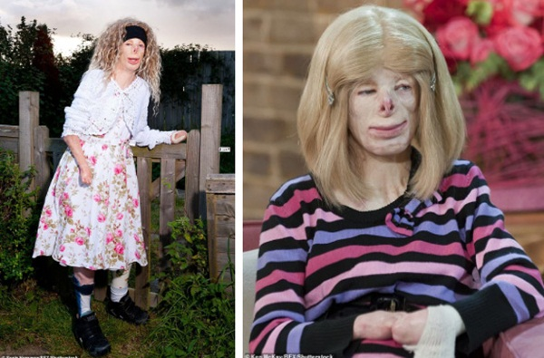 Cô bé từng bỏng nặng đến biến dạng, cứu hoả nhìn cứ ngỡ là búp bê nhựa đen gây bất ngờ với diện mạo và cuộc sống hiện tại-4