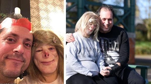 Cô bé từng bỏng nặng đến biến dạng, cứu hoả nhìn cứ ngỡ là búp bê nhựa đen gây bất ngờ với diện mạo và cuộc sống hiện tại-7