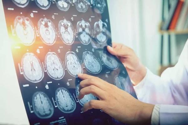 43 người Canada mắc bệnh lạ gây co thắt cơ bắp, mất trí nhớ và ảo giác-2
