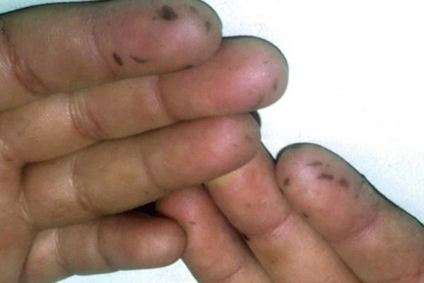 Xuất hiện nhiều đốm tàn nhang ở môi, họng và tay, người phụ nữ không ngờ mình mắc bệnh ung thư-1