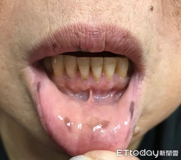 Xuất hiện nhiều đốm tàn nhang ở môi, họng và tay, người phụ nữ không ngờ mình mắc bệnh ung thư-2