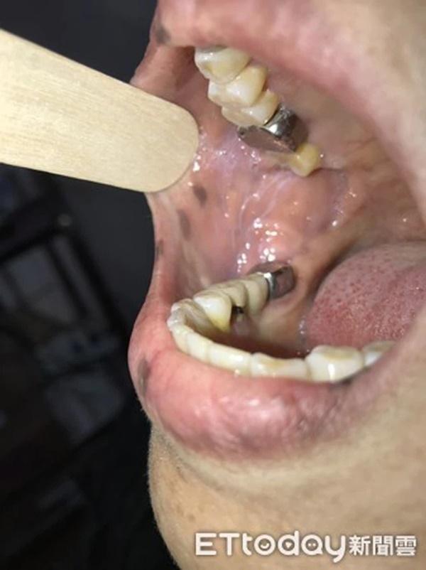 Xuất hiện nhiều đốm tàn nhang ở môi, họng và tay, người phụ nữ không ngờ mình mắc bệnh ung thư-3