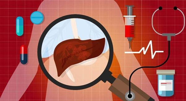 4 kiểu người dễ trở thành mục tiêu của ung thư gan, liệu có bạn trong đó?-1