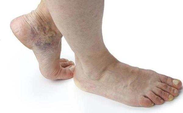 Nếu tín hiệu này xuất hiện trên bàn chân, cho thấy tim đang bị bệnh-1