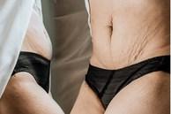 Một số mẹo chữa rạn, chùng da bụng sau sinh cho các bà mẹ tự tin diện bikini ngày hè