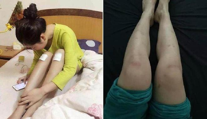 Diễn viên quần chúng bị dẫm đạp và thực tế tàn khốc ở phim trường Trung Quốc-4