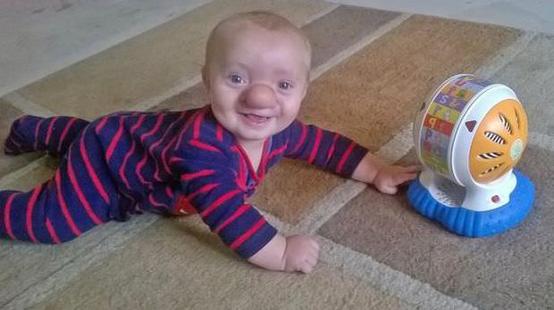 """Cậu bé Pinocchio đời thực"""" sinh ra với chiếc mũi to dị dạng khiến bố mẹ cũng sốc, gây bất ngờ với diện mạo sau ít năm-3"""