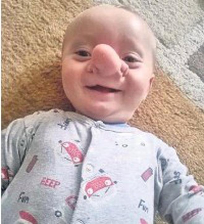 """Cậu bé Pinocchio đời thực"""" sinh ra với chiếc mũi to dị dạng khiến bố mẹ cũng sốc, gây bất ngờ với diện mạo sau ít năm-4"""