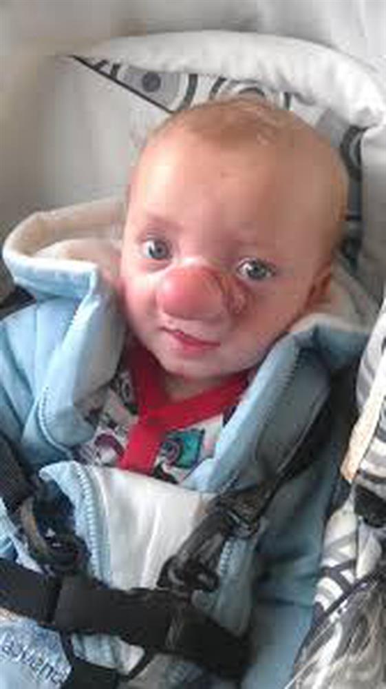 """Cậu bé Pinocchio đời thực"""" sinh ra với chiếc mũi to dị dạng khiến bố mẹ cũng sốc, gây bất ngờ với diện mạo sau ít năm-5"""