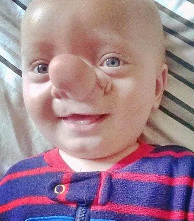 """Cậu bé Pinocchio đời thực"""" sinh ra với chiếc mũi to dị dạng khiến bố mẹ cũng sốc, gây bất ngờ với diện mạo sau ít năm-6"""