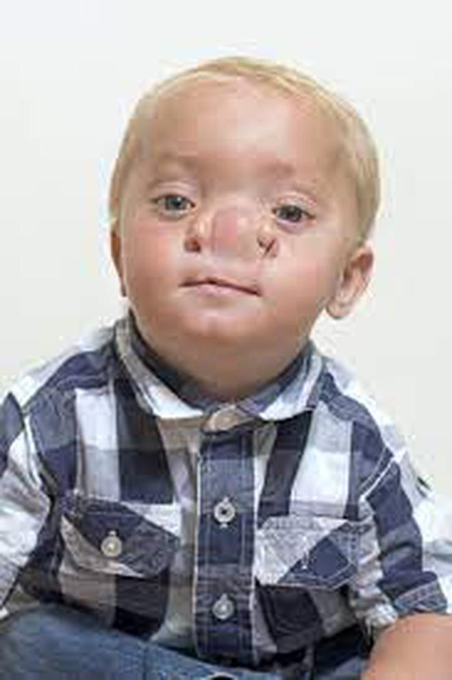 """Cậu bé Pinocchio đời thực"""" sinh ra với chiếc mũi to dị dạng khiến bố mẹ cũng sốc, gây bất ngờ với diện mạo sau ít năm-10"""