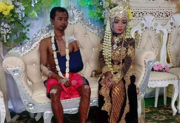 Bức ảnh chú rể mặt buồn thiu, toàn thân đầy thương tích tại đám cưới gây bão MXH, câu chuyện phía sau khiến ai cũng xúc động-1