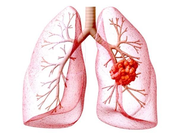 BS tiết lộ: Ung thư phổi giai đoạn cuối vẫn có thể sống thêm 10 năm nhờ 2 giải pháp mới-1