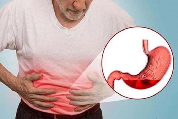 Để giữ dạ dày không bị thủng, hãy thay đổi 5 thói quen xấu này càng sớm càng tốt-1