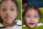 Từ chuyện bé 5 tuổi phun môi collagen: Phun xăm môi cho trẻ em dẫn đến những hệ lụy gì?
