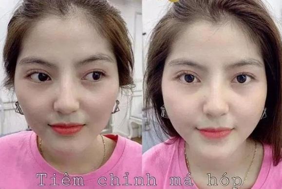 Bị soi từng phẫu thuật thẩm mỹ mới có dung nhan hiện tại, bạn gái tin đồn của Quang Hải lên tiếng đáp trả cực gắt-6