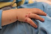 Cả nước ghi nhận hơn 18.400 ca mắc tay chân miệng, 4 trường hợp tử vong: Bệnh tay chân miệng có lây không?