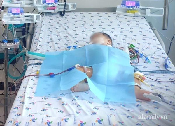 Bị sốt ói 4 ngày liên tục, bé gái 6 tháng tuổi nguy kịch vì mắc tay chân miệng độ nặng nhất-1