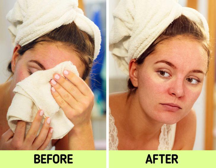 Nếu biết lý do khiến làn da ngày càng nhăn nheo mụn nhọt, bạn sẽ cạch đến già việc dùng khăn lau khô mặt-5