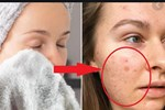 Nếu biết lý do khiến làn da ngày càng nhăn nheo mụn nhọt, bạn sẽ 'cạch' đến già việc dùng khăn lau khô mặt