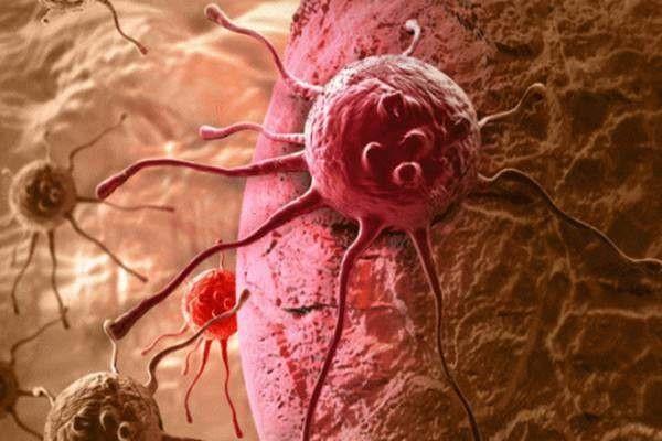 Nhiều người sợ ung thư, nhưng không biết rằng ung thư cũng sợ 5 điều này-1