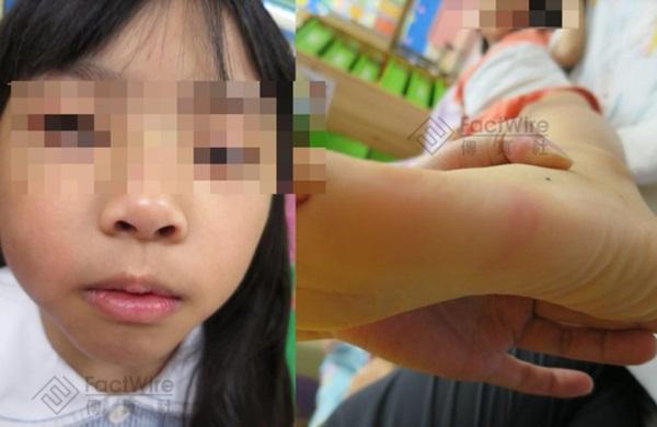 Bé gái 5 tuổi bị bố và mẹ kế bạo hành đến chết: Bị ném lên trần nhà, cơ thể kiệt quệ như người già, chết cũng không được no bụng-5