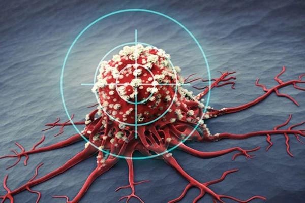 1/6 bệnh nhân mắc ung thư đều do viêm: Nếu có 5 vị trí này trên cơ thể bị viêm thì bạn hãy cảnh giác bệnh ung thư đang đến gần-1