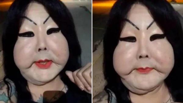 Đang bình thường, người phụ nữ bị biến dạng mặt kinh hoàng vì thực hiện thủ thuật làm đẹp nhiều cô gái ưa chuộng-1