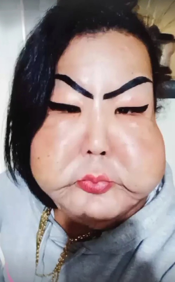 Đang bình thường, người phụ nữ bị biến dạng mặt kinh hoàng vì thực hiện thủ thuật làm đẹp nhiều cô gái ưa chuộng-2