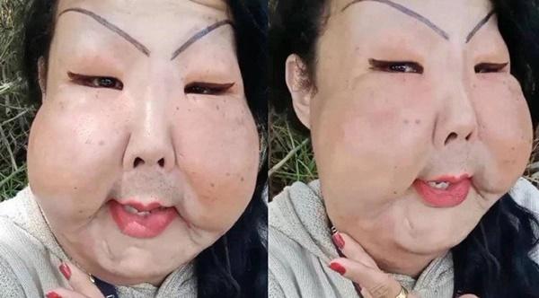 Đang bình thường, người phụ nữ bị biến dạng mặt kinh hoàng vì thực hiện thủ thuật làm đẹp nhiều cô gái ưa chuộng-3