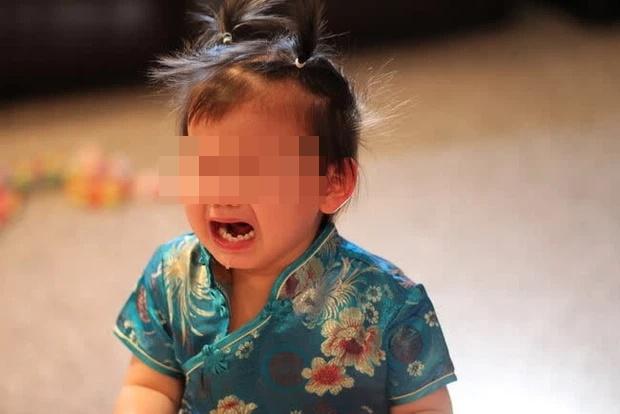 Bé trai 5 tuổi bị u nang dây thanh quản, bố mẹ nên cẩn trọng với thói quen khóc hoặc la hét của con-2