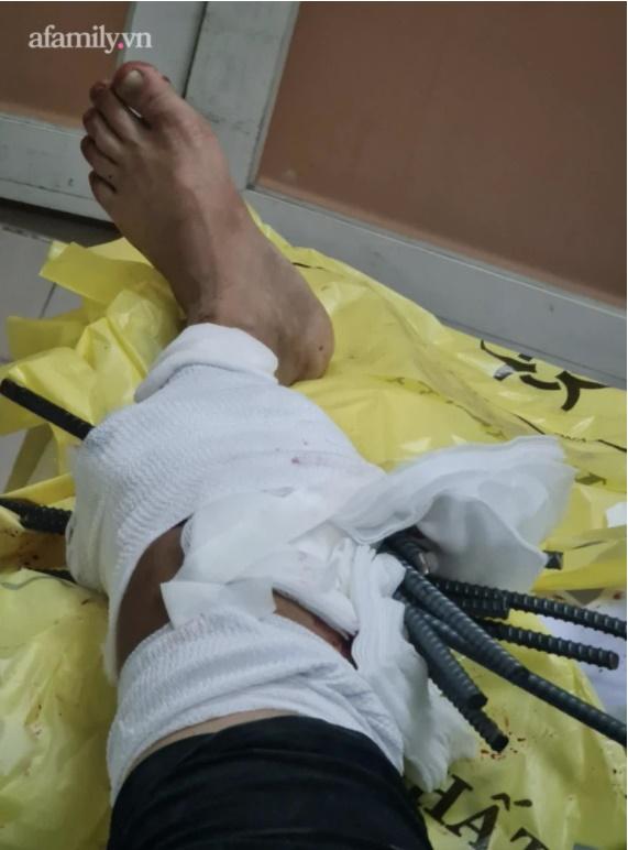 Kinh hoàng: Va chạm với xe ba gác, nam thanh niên bị 11 thanh sắt dài đâm xuyên chân-3