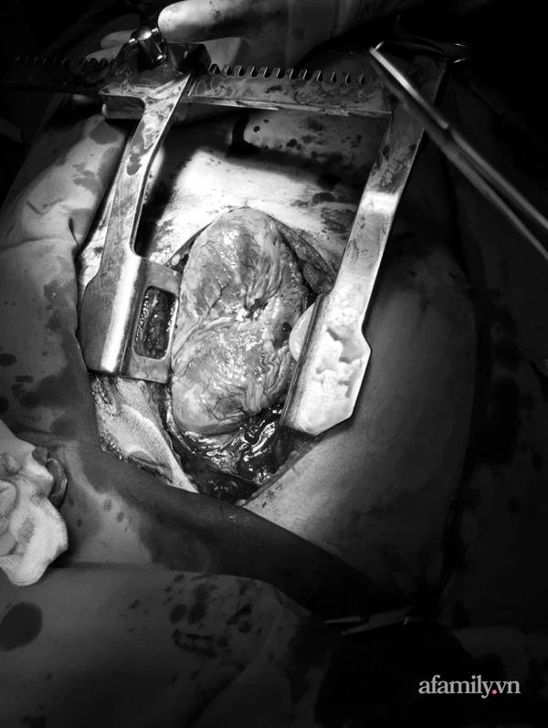 Cấp cứu người đàn ông bị kéo đâm thủng tim máu phun thành vòi, 3 lần tim ngừng đập lúc 0 giờ-1