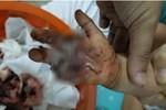 Bà mẹ lên tiếng cảnh báo về một món đồ trang trí trong nhà đã làm đứt 6 ngón tay của con
