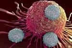 Nếu ai có 4 đặc điểm này, có thể bạn đã 'miễn dịch' với bệnh ung thư, xin chúc mừng!