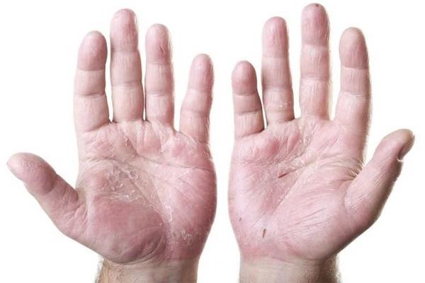 8 dấu hiệu cơ thể kêu cứu vì ăn thiếu chất: Rất nhiều người ăn sai cách gặp tình trạng này-1