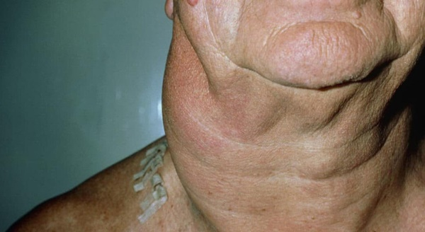7 dấu hiệu sớm cảnh báo ung thư-3