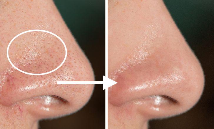 Bác sĩ da liễu chỉ ra 8 điều nên làm khi gặp tình trạng lỗ chân lông to và dầu nhờn tiết nhiều-3
