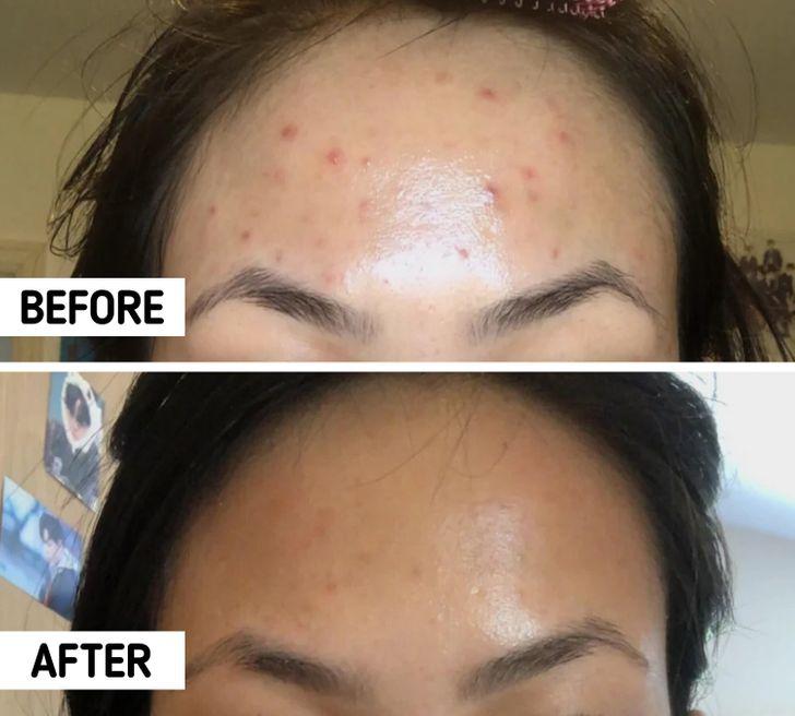 Bác sĩ da liễu chỉ ra 8 điều nên làm khi gặp tình trạng lỗ chân lông to và dầu nhờn tiết nhiều-4