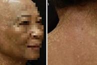 Người phụ nữ 7 năm trời hóa 'dị nhân', da sạm đen và tóc rụng đến đỉnh đầu vì 2 bệnh lý hiếm gặp