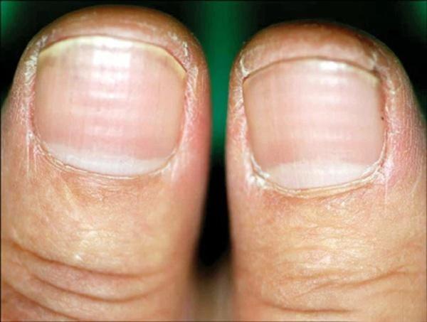 4 đặc điểm xuất hiện trên móng tay là dấu hiệu cảnh báo bệnh tiểu đường-3