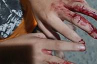 TP.HCM: Cha đánh con nát tay, bắt đi bán vé số