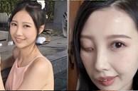 9 năm chiến đấu với bệnh ung thư hiếm gặp, nữ ca sĩ đã trút hơi thở cuối cùng ở tuổi 31 với gương mặt biến dạng