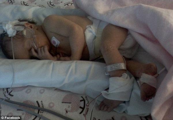 Bị sét đánh trúng khi đang mang thai tháng cuối, sản phụ được đưa vào viện cấp cứu và hình hài của đứa trẻ khiến ekip mổ choáng váng-4